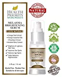 Best Treatment For Melasmas - 100% Natural & Organic Melasma Treatment for Face Review