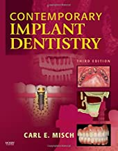 Best contemporary implant dentistry carl misch Reviews