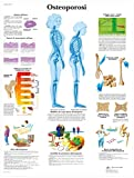 3B Scientific VR4121UU Osteoporosi