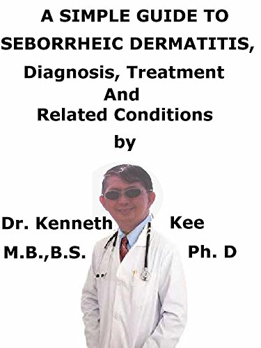 A  Simple  Guide  To  Seborrheic Dermatitis,  Diagnosis, Treatment  And  Related Conditions (A Simple Guide to Medical Conditions) (English Edition)