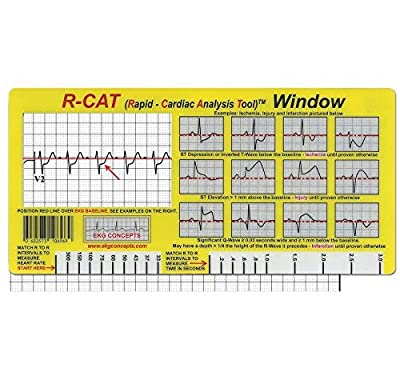 ECG Card (EKG) R-CAT Window. ECG tool for paramedics, nurses and doctors from Plastics Printers - Hasting Minnesota USA