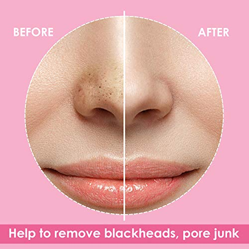 Blackhead Pore Strips, Blackhead Remover Deep Cleansing Pore Strips For Nose, 34 Strips, Hypo Allergenic and Oil Free