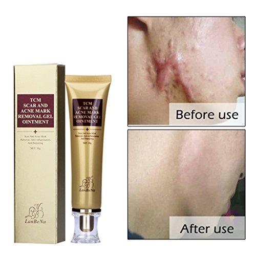 Homehere Acne Scar Removal Cream Skin Repair Face Cream For Acne