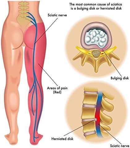 inflamația articulațiilor mici ale degetelor