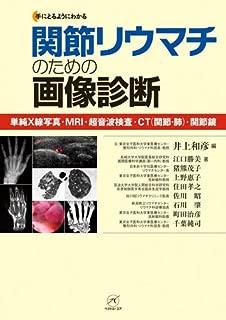 関節リウマチのための画像診断〜単純X線写真・MRI・超音波検査・CT(関節・肺)・関節鏡〜 (手にとるようにわかる)