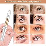 Eye Delight Boost Serum, schnelle Augencreme, Creme zur sofortigen Entfernung von Tränensäcken, Anti-Aging-Augencreme zur Straffung von Tränensäcken unter Tränensäcken (1pcs)