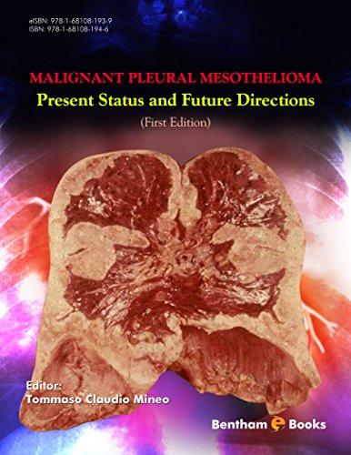 Malignant Pleural Mesothelioma: Present Status and Future Directions (English Edition)