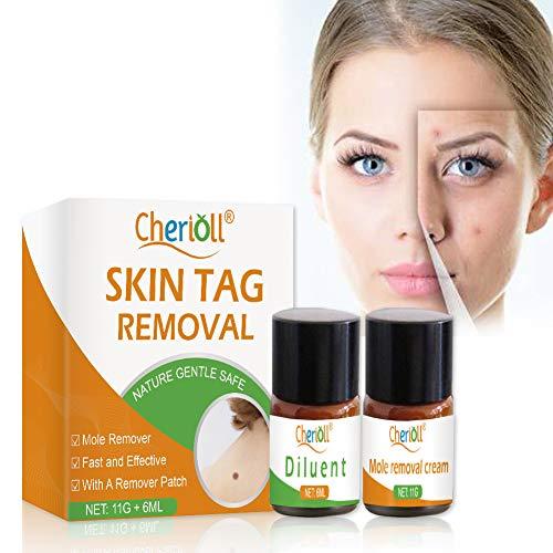 Skin Tag Remover, Muttermal Entfernen, Mole Remover, Spot Leberfleck Entfernen,Moles und Skin Tags entfernen, Stufen für alle Arten von haut-tag, Natürliche