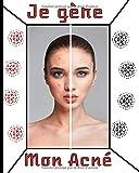 Je gère mon acné: Gérez votre acné au quotidien avec les suivis des symptômes, de la diététique, des traitements, de l'intensité de la douleur etc... 8X10, 120 pages
