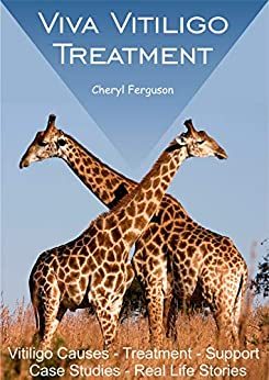 Viva Vitiligo Treatment: Vitiligo Causes - Treatment - Support - Case Studies - Real Life Stories (English Edition) par [Cheryl  Ferguson]