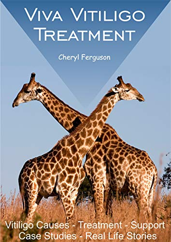 Viva Vitiligo Treatment: Vitiligo Causes - Treatment - Support - Case Studies - Real Life Stories (English Edition)
