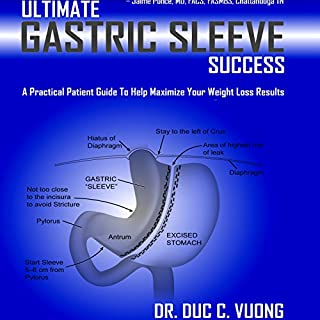 Ultimate Gastric Sleeve Success     A Practical Patient Guide to Help Maximize Your Weight Loss Results              By:                                                                                                                                 Duc C. Vuong                               Narrated by:                                                                                                                                 Al Kessel                      Length: 6 hrs and 1 min     99 ratings     Overall 4.6