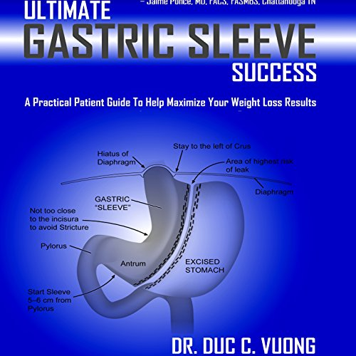 Ultimate Gastric Sleeve Success audiobook cover art