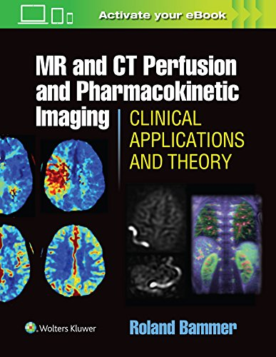 Bammer, R: MR & CT Perfusion Imaging: Clinical Applications: Clinical Applications and Theoretical Principles