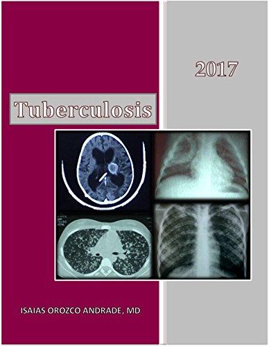 Tuberculosis 2017: English Edition