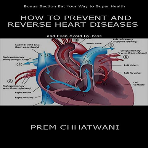 How to Prevent and Reverse Heart Diseases - And Even Avoid By-Pass cover art