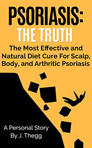 PSORIASIS: THE TRUTH: THE MOST EFFECTIVE AND NATURAL DIET CURE FOR SKIN PSORIASIS AND SCALP PSORIASIS (UPDATED 1-1-20 DO'S AND DON'TS Psoriasis treatment ... psoriasis lotion Book 1) (English Edition)