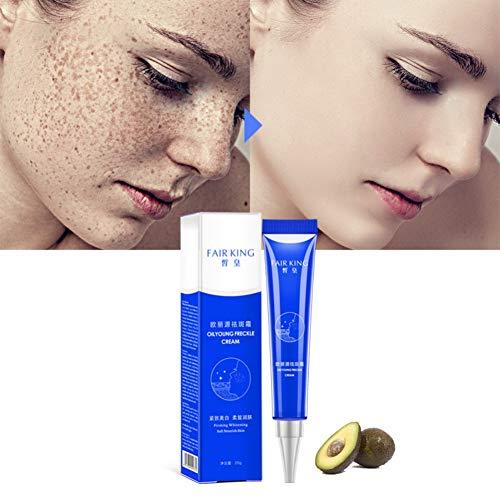 Crema de pecas blanqueadora Hidratación efectiva Eliminar Melasma Tratamiento de manchas de acné Pigmento Melanina Blanqueamiento Cuidado de la piel