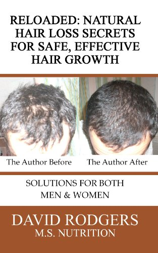 Reloaded: Natural Hair Loss Secrets for Safe, Effective Hair Growth (English Edition)