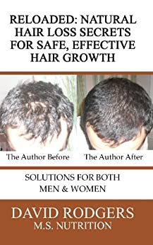Reloaded: Natural Hair Loss Secrets for Safe, Effective Hair Growth (English Edition) por [David Rodgers]