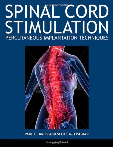 Spinal Cord Stimulation Implantation: Percutaneous Implantation Techniques