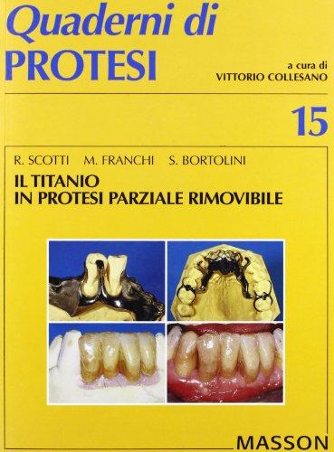 Il titanio in protesi parziale rimovibile (Quaderni di prote