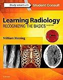 Learning Radiology: Recognizing the Basics - William Herring MD  FACR