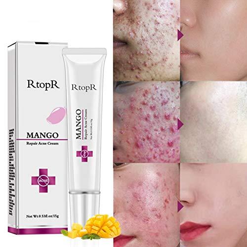 Cocohot Mango Repair Akne-Creme, Anti-Akne-Gel, Akne Behandlung Gesicht Spflege Creme Pickel Behandlung