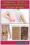 Osteoporosis - Reverse it Completely with Natural Cure and Home Remedies (English Edition)