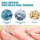 Zoom IMG-2 trattamento unghie fungo piedi funghi