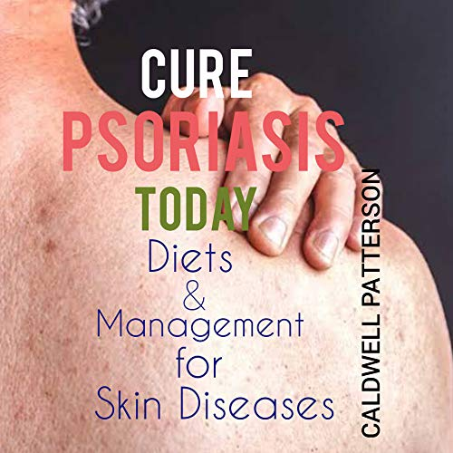 CURE PSORIASIS TODAY: DIET AND MANAGEMENT FOR SKIN DISEASE (English Edition)
