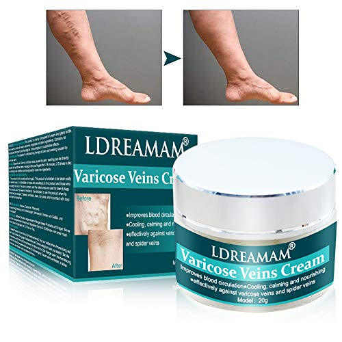 Varicose Veins Cream, Varicose Vein Removal Cream, Relief Phlebitis Angiitis Inflammation Blood Vessel Health Care