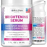 Best Face Bleaching Creams - Hyaluronic Acid Dark Spot Corrector Remover & Brightening Review