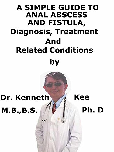 A  Simple  Guide  To  Anal Abscess And Fistula,  Diagnosis, Treatment  And  Related Conditions (English Edition)