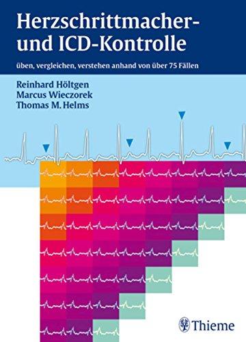 Herzschrittmacher- und ICD-Kontrolle: üben, vergleichen, verstehen anhand von 76 Fällen