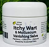Urban ReLeaf Itchy WART Vanishing Salve ! Powerful Essential Oils, Painless, Effective, 100% Natural. Topical Ointment. Safe, Gentle for Kids & Delicate Skin. 'No More red Bumps!' Thuja