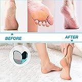 Zoom IMG-2 raspa piedi professionale in vetro