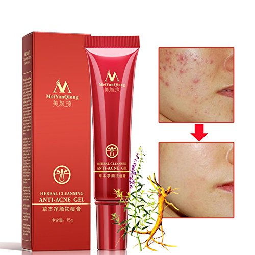 Angmile Face Acne Skin Care Products Herbal Cleansing Anti-Acne Gel 15ml Acne Treatment Face Cream A01