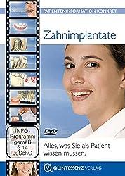 Zahnersatz auf Implantaten: Alles, was Sie als Patient wissen müssen