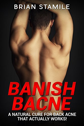 Banish Bacne: A Natural Cure for Back Acne that  Actually Works! (English Edition)