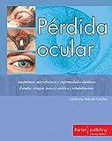PÉRDIDA OCULAR (OFTALMOLOGÍA)