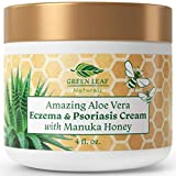 Amazing Aloe Vera Eczema and Psoriasis Cream with Manuka Honey by Green Leaf Naturals - Soothing Natural Relief for Dry Itchy Flaky Scalp, Skin Rash, Redness, Rosacea, Seborrhea, Dermatitis - 4 oz