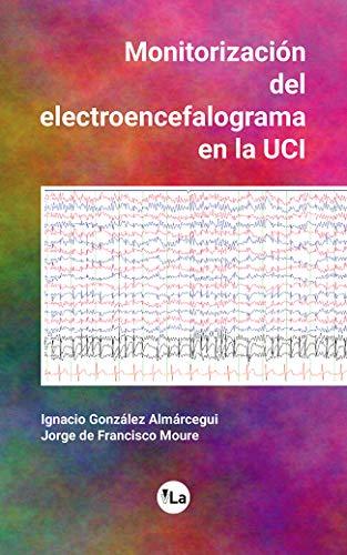 Monitorización del electroencefalograma en la UCI