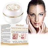 Whitening Cream, Freckle Removal Cream, Skin Lightening Cream, Dark Spot Remover, Skin Whitening