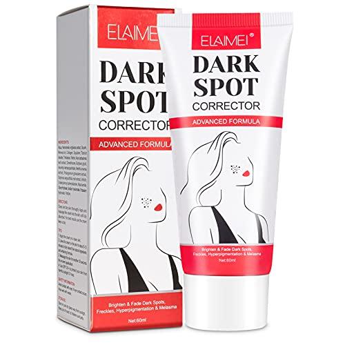 Dark Spot Remover Corrector for Face Body, Dark Skin Whitening Bleaching Cream for Inner Thighs Underarm Lightening, Fade Freckle Melasma Age Spot, Hyperpigmentation Treatment for Women & Men