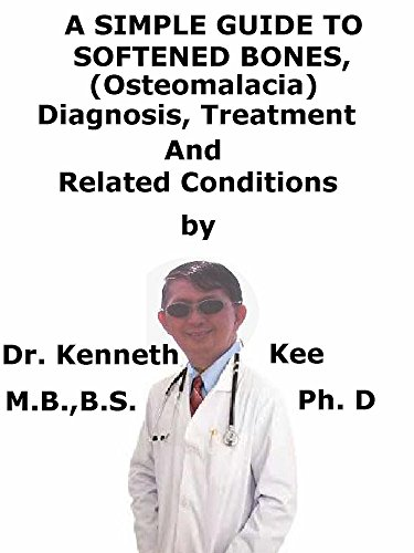 A  Simple  Guide  To  Softened Bones (Osteomalacia)  Diagnosis, Treatment  And  Related Conditions (A Simple Guide to Medical Conditions)