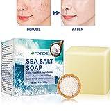 Akne seife, Handgemachtes Seife, Natural Seife, Gesicht Seife, Sea Salt Seife, Reinige Gesicht und...