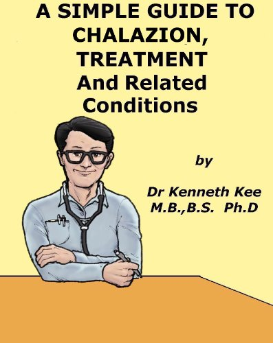 A Simple Guide to Chalazion, Treatment and Related Diseases (A Simple Guide To Medical Conditions)