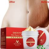 Spdoo Stretch Marks Removal Cream, Smooth Skin Repair Body Cream Natural Essence Repair Cream After Pregnancy, 35g