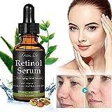 retinol Serum, ácido hialurónico Serum, Anti-Arrugas de Serum, anti-edad Serum con 2,5% retinol, ácido hialurónico y Vitamina E–para Wrinkles, Fine Lines y piel hydrat miniaturización (30ml)